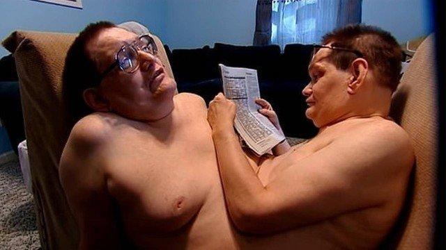 Morrem, aos 68 anos, os gêmeos siameses mais longevos do mundo